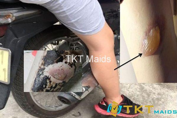 bỏng bô xe máy thường gặp
