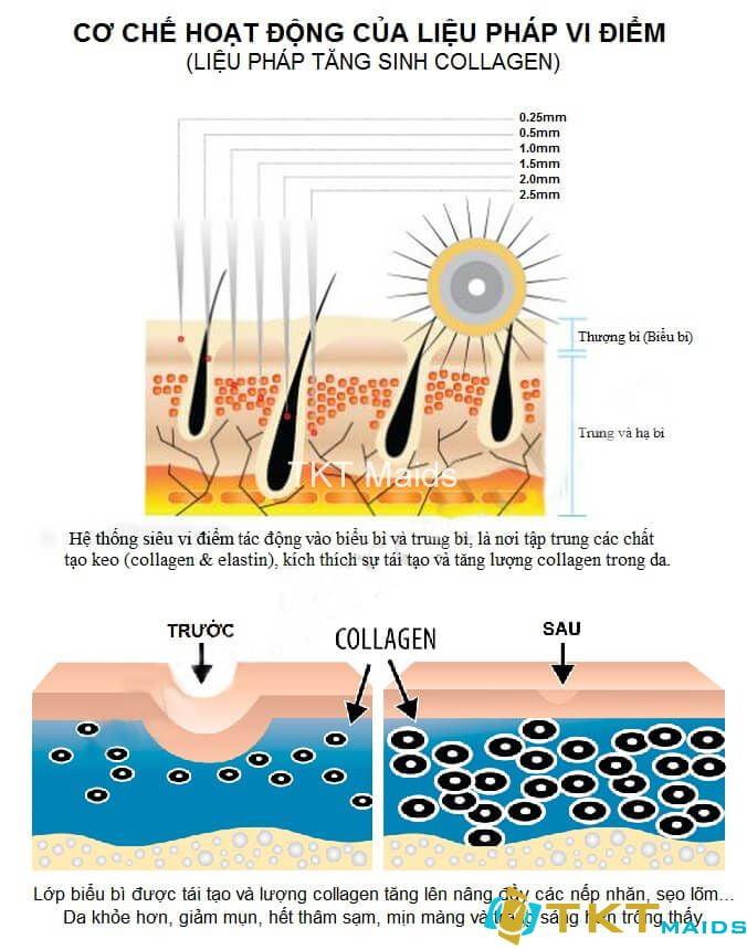 phương pháp làm mờ sẹo bằng tăng sinh collagen