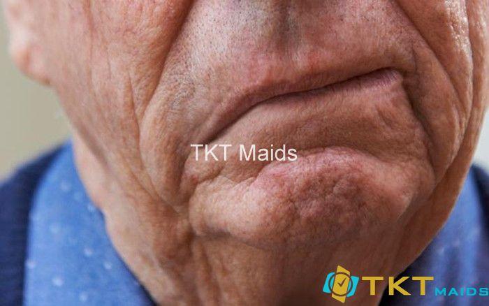 Liệt nửa mặt, méo miệng là dấu hiệu rõ ràng về chứng đột quỵ