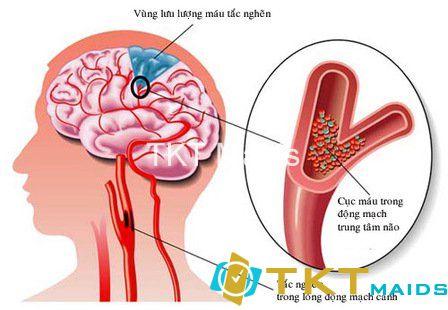Nguyên nhân gây đột quỵ là do sự bất ổn của tuần hoàn máu não