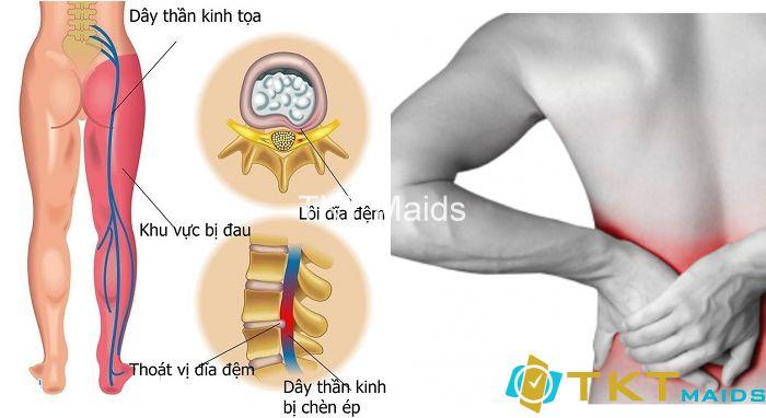 Dấu hiệu thường thấy nhất ở người thoát vị đĩa đệm là đau từ lưng dọc xuống chân